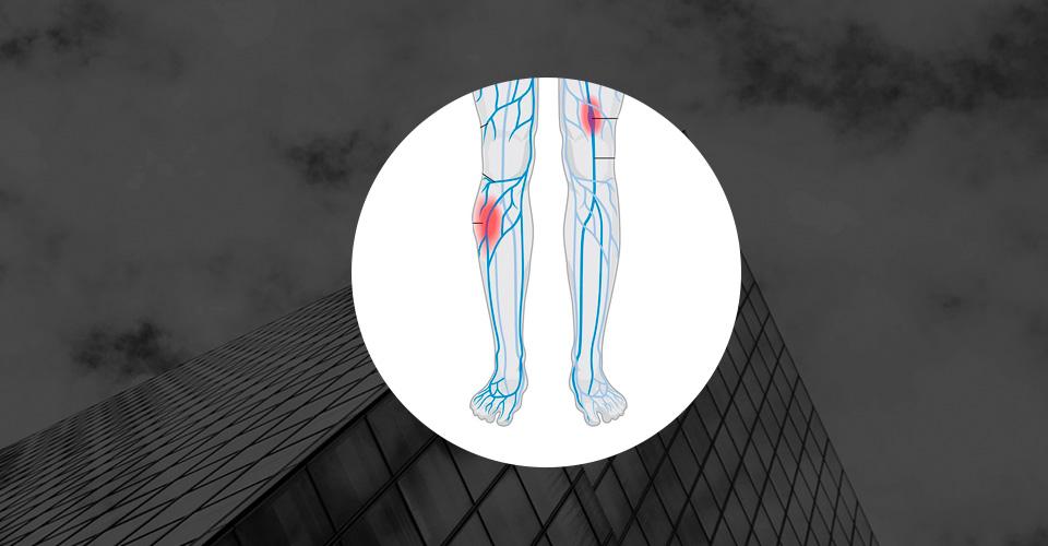 Медицинский тренажёр, моделирующий симптоматику тромбоза нижних конечностей, – новая ступень в борьбе с тяжёлым недугом